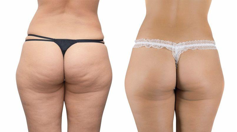 cavitacion ultrasonica antes y despues